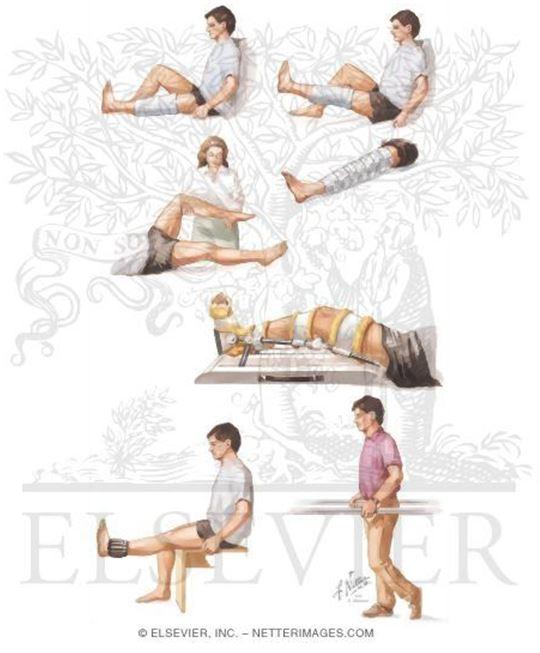 膝关节半月板损伤诊治及术后康复 锻炼 指南